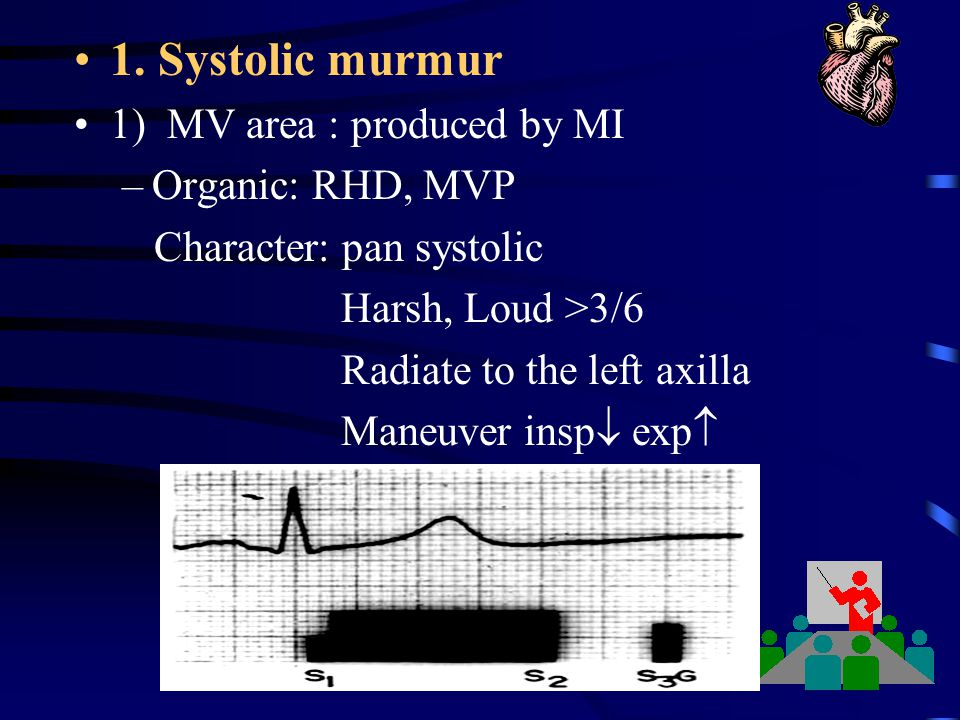 1. Systolic murmur 1) MV area : produced by MI Organic: RHD, MVP