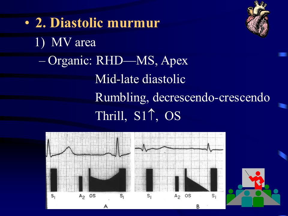 2. Diastolic murmur 1) MV area Organic: RHD—MS, Apex