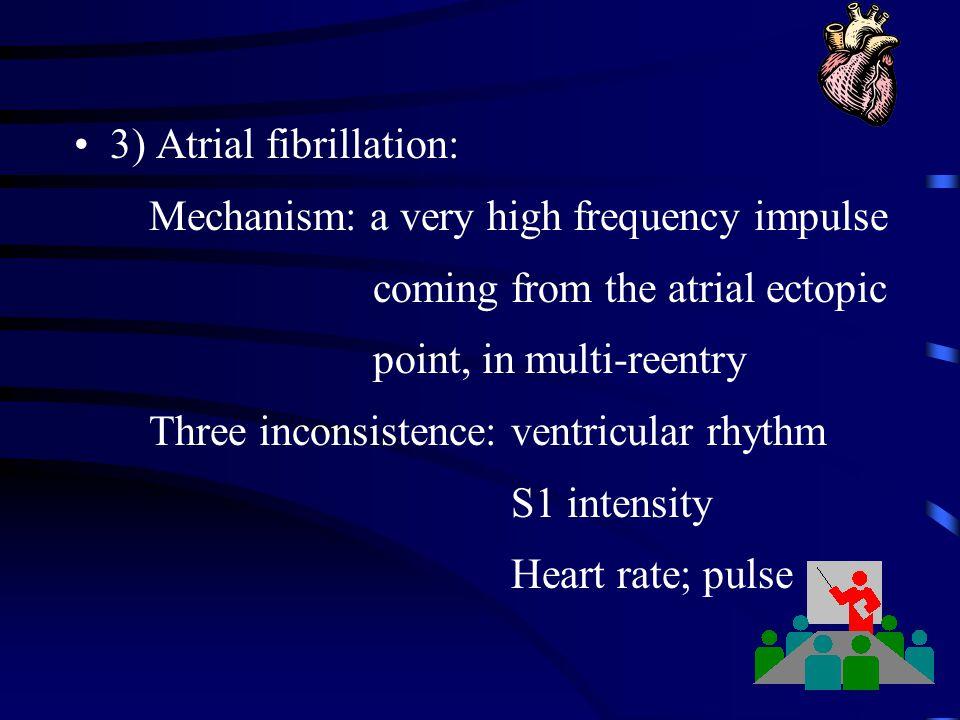 3) Atrial fibrillation: