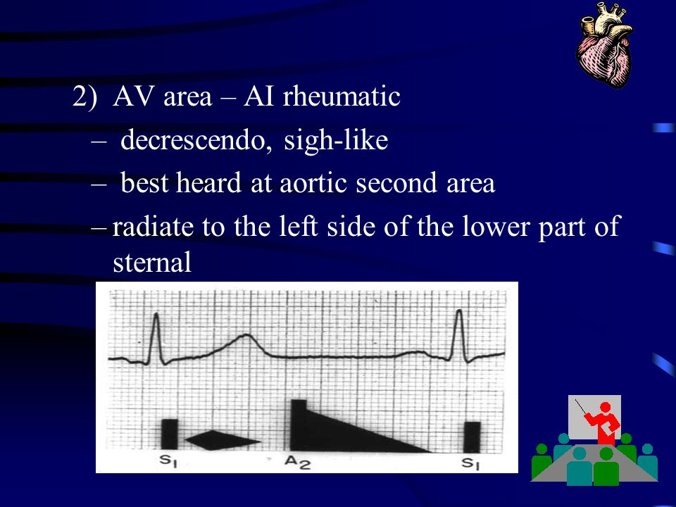 2) AV area – AI rheumatic decrescendo, sigh-like.