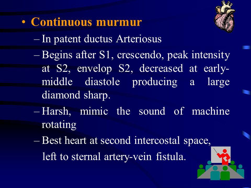 Continuous murmur In patent ductus Arteriosus