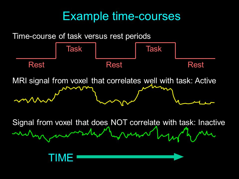 Example time-courses TIME Time-course of task versus rest periods Task