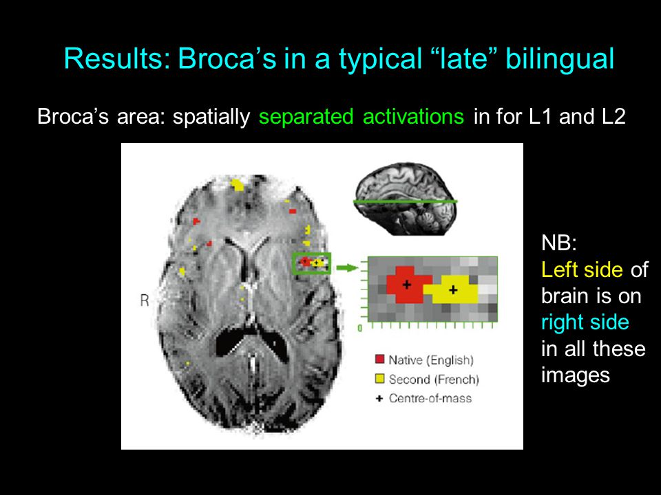 Results: Broca's in a typical late bilingual