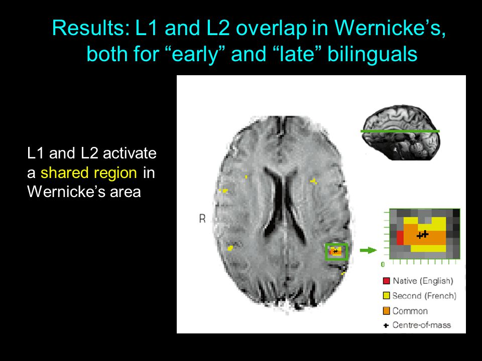 Results: L1 and L2 overlap in Wernicke's, both for early and late bilinguals