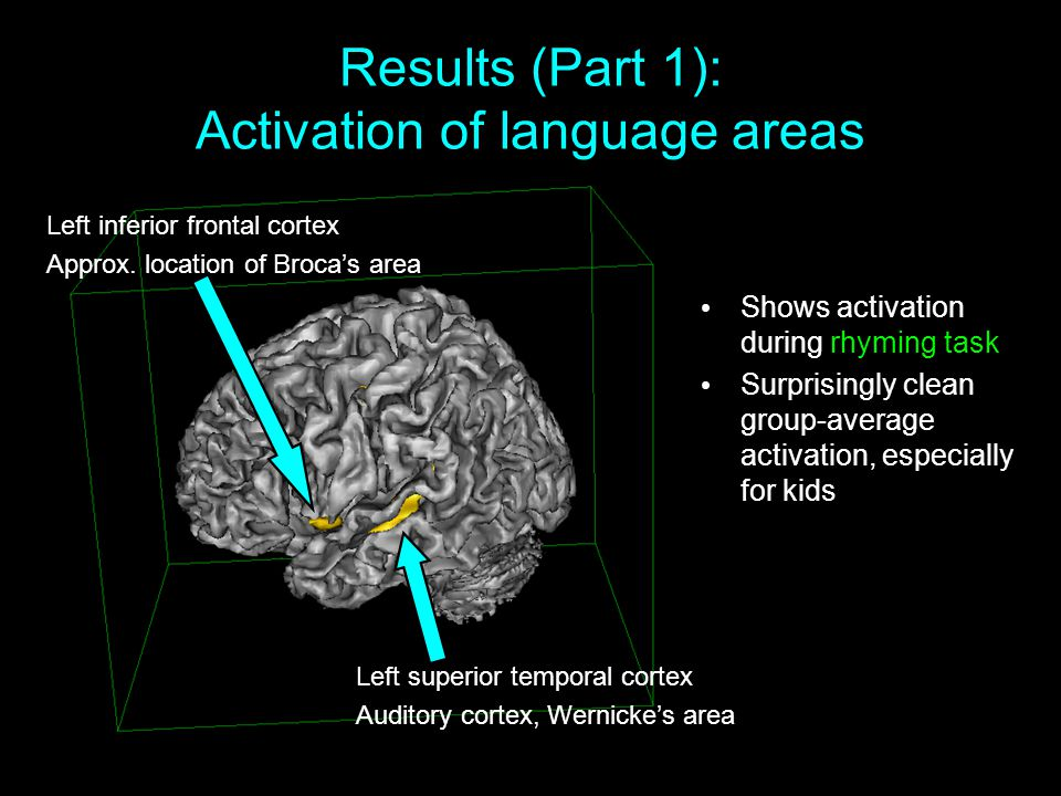 Results (Part 1): Activation of language areas