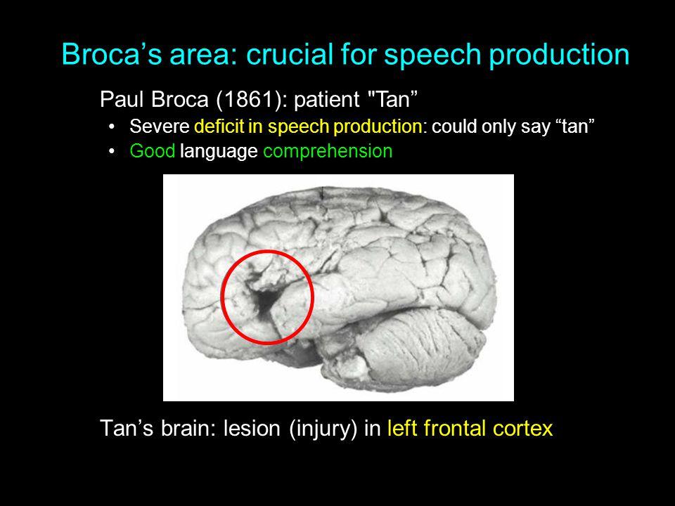 Broca's area: crucial for speech production