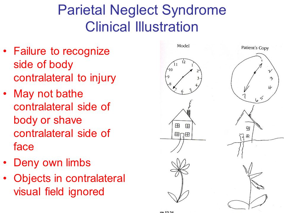 Parietal Neglect Syndrome Clinical Illustration