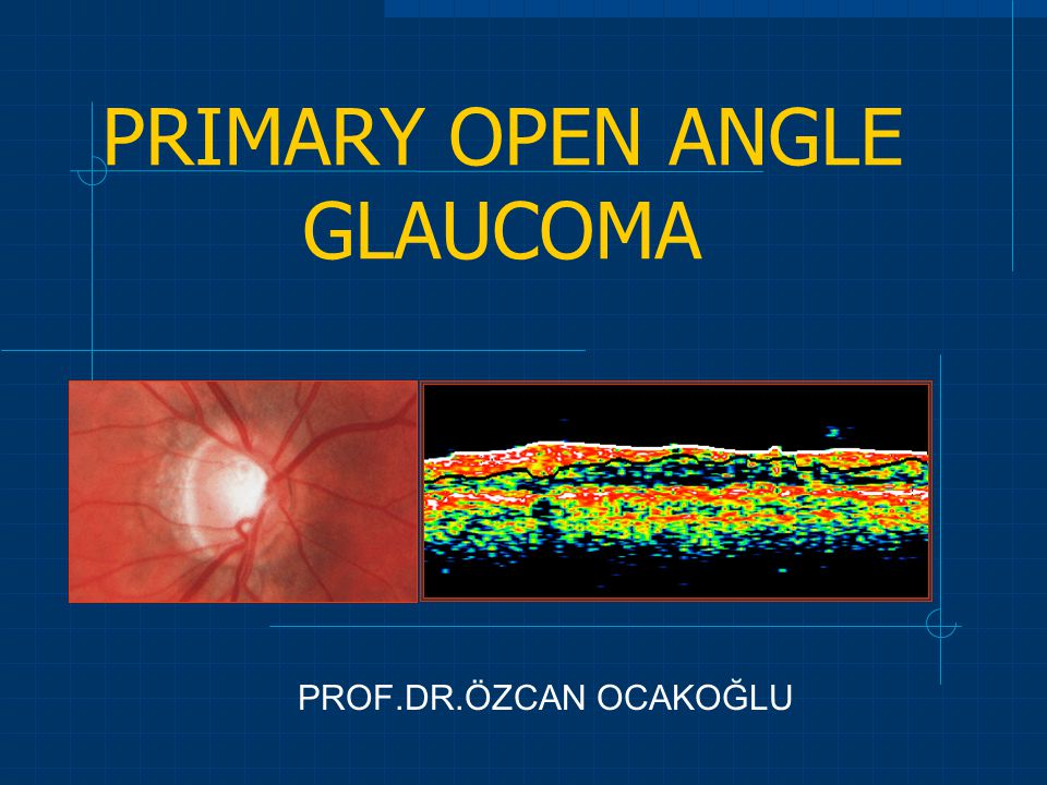 PRIMARY OPEN ANGLE GLAUCOMA