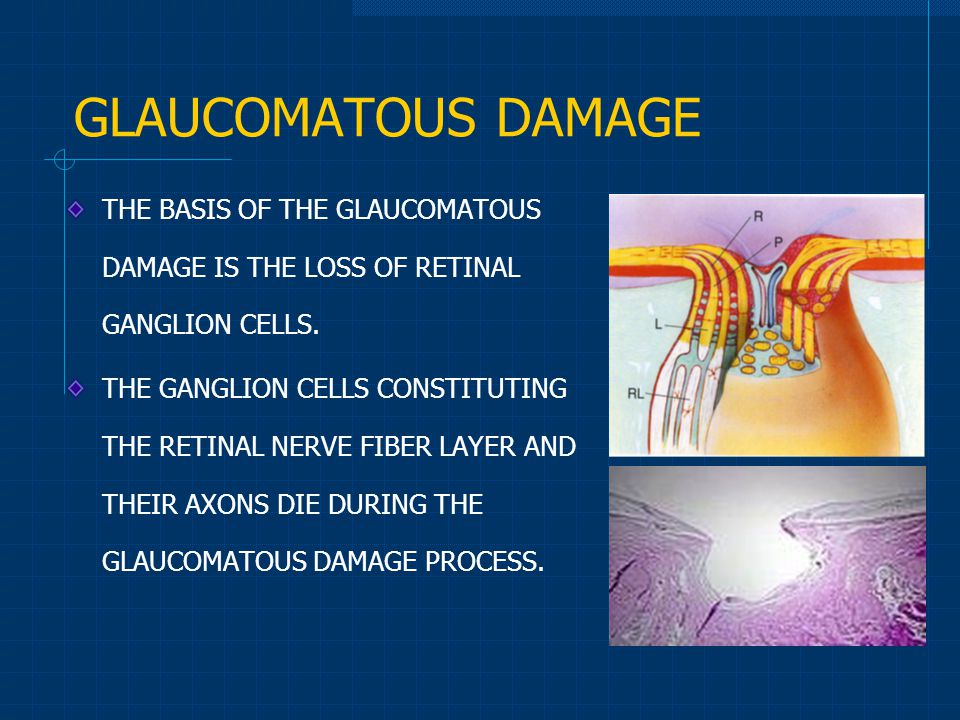 GLAUCOMATOUS DAMAGE THE BASIS OF THE GLAUCOMATOUS DAMAGE IS THE LOSS OF RETINAL GANGLION CELLS.