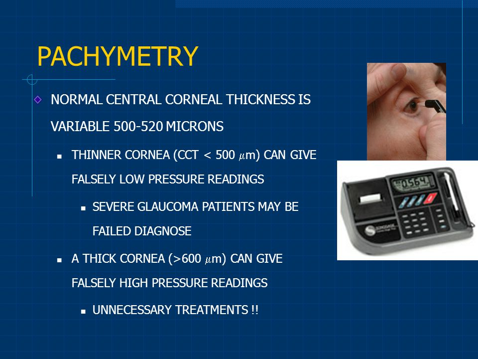 PACHYMETRY NORMAL CENTRAL CORNEAL THICKNESS IS VARIABLE 500-520 MICRONS. THINNER CORNEA (CCT < 500 m) CAN GIVE FALSELY LOW PRESSURE READINGS.
