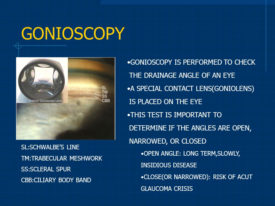 GONIOSCOPY GONIOSCOPY IS PERFORMED TO CHECK