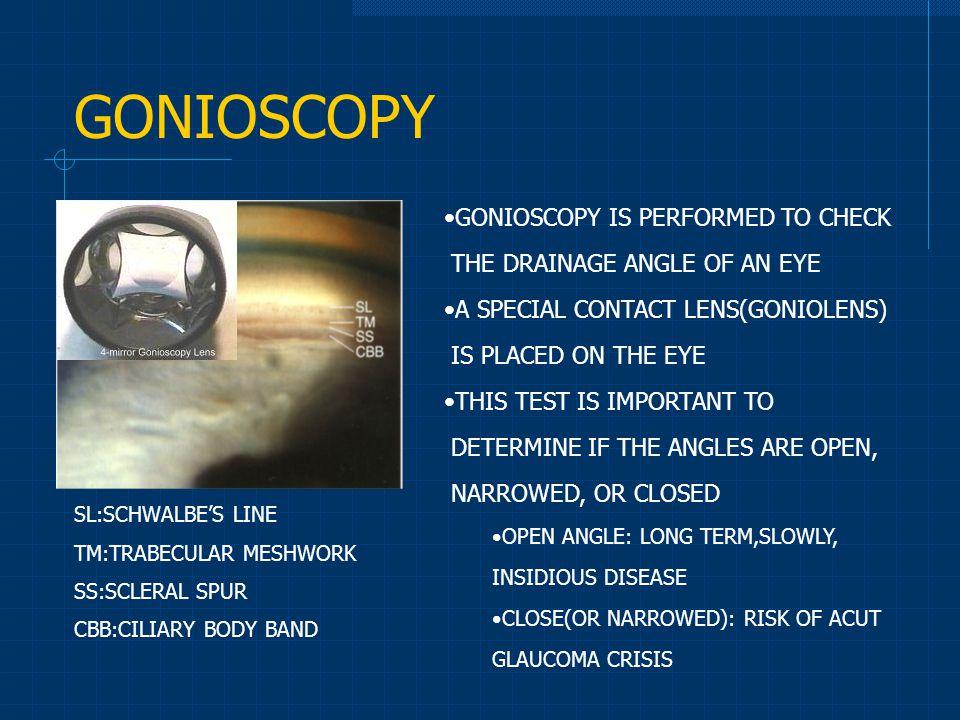 GONIOSCOPY GONIOSCOPY IS PERFORMED TO CHECK
