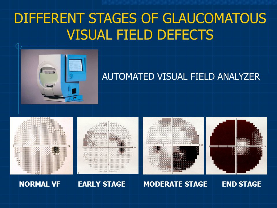 DIFFERENT STAGES OF GLAUCOMATOUS VISUAL FIELD DEFECTS
