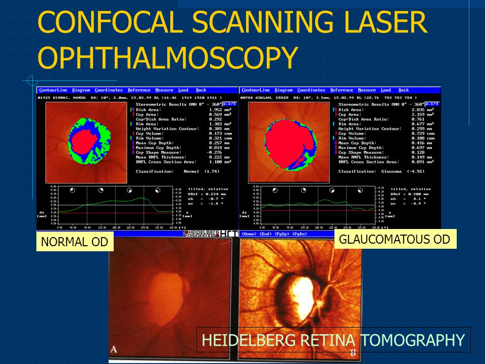 CONFOCAL SCANNING LASER OPHTHALMOSCOPY