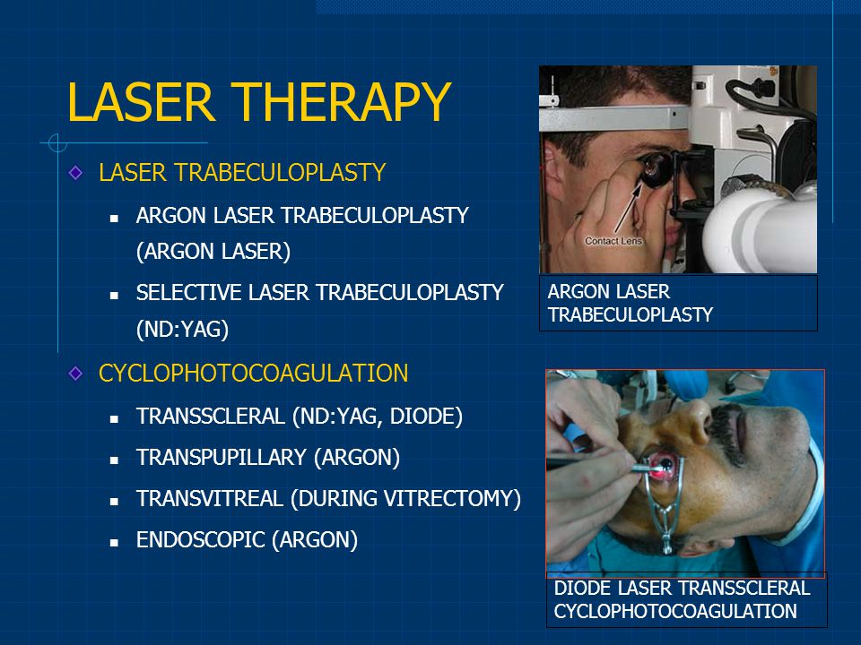 LASER THERAPY LASER TRABECULOPLASTY CYCLOPHOTOCOAGULATION