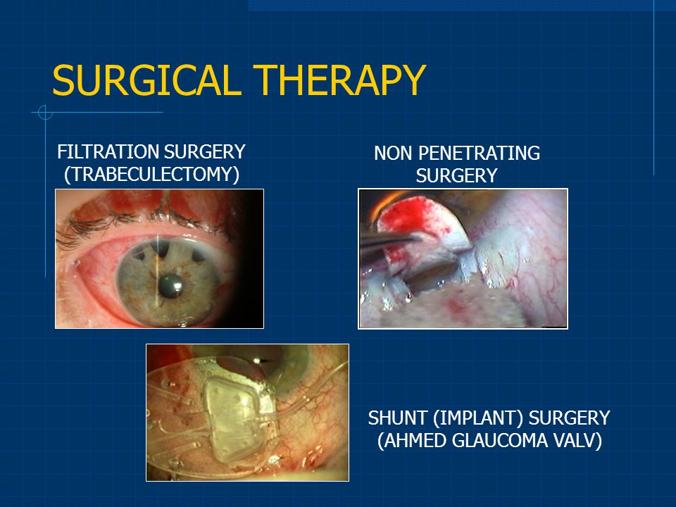 SURGICAL THERAPY FILTRATION SURGERY NON PENETRATING SURGERY