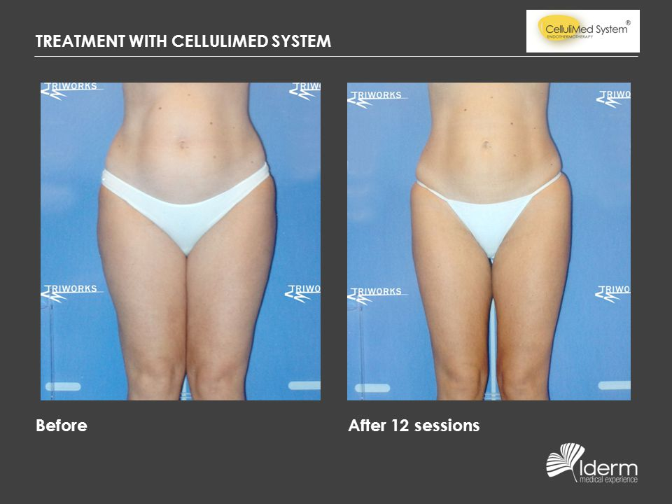 TREATMENT WITH CELLULIMED SYSTEM