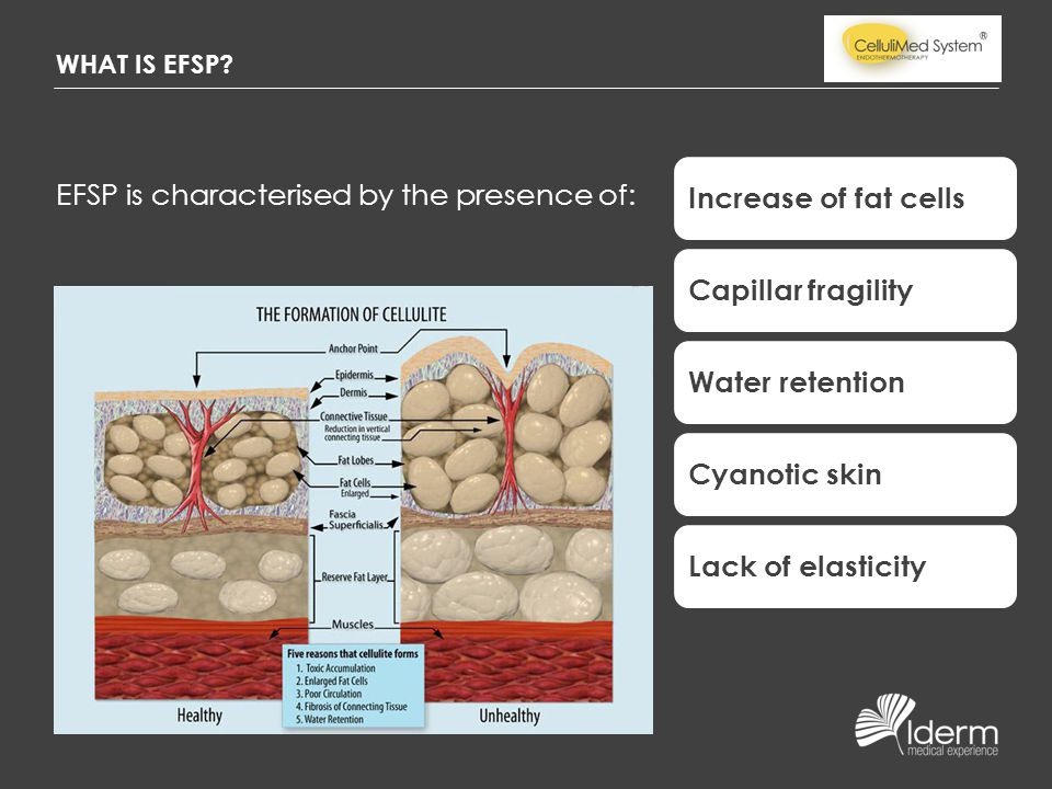 EFSP is characterised by the presence of: