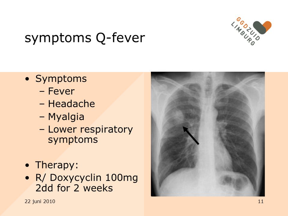 symptoms Q-fever Symptoms Fever Headache Myalgia