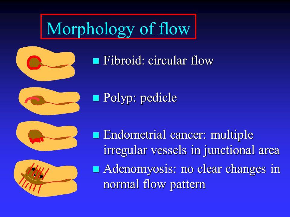 Morphology of flow Fibroid: circular flow Polyp: pedicle