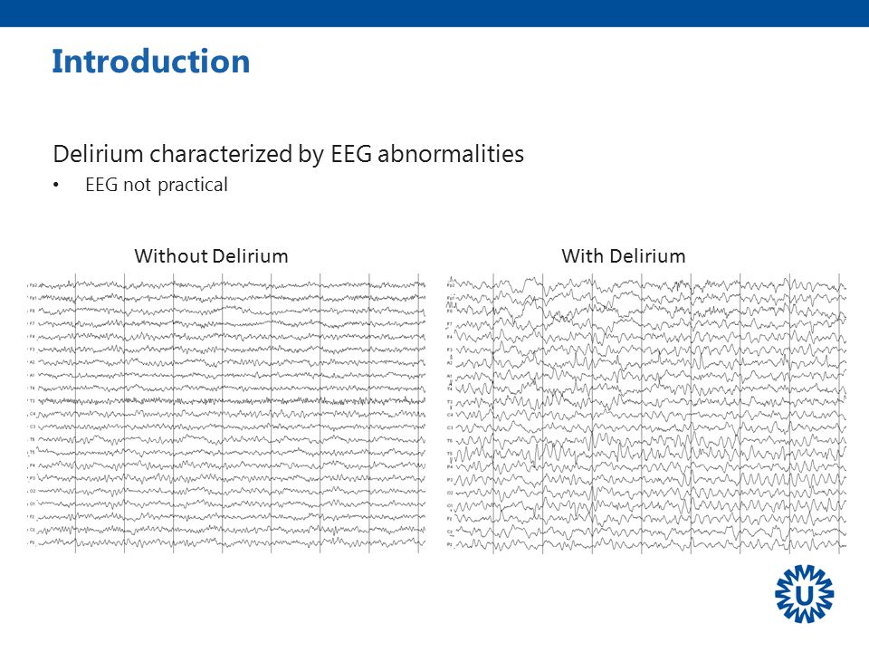 Introduction Delirium characterized by EEG abnormalities