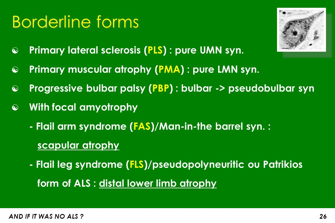 Borderline forms Primary lateral sclerosis (PLS) : pure UMN syn.
