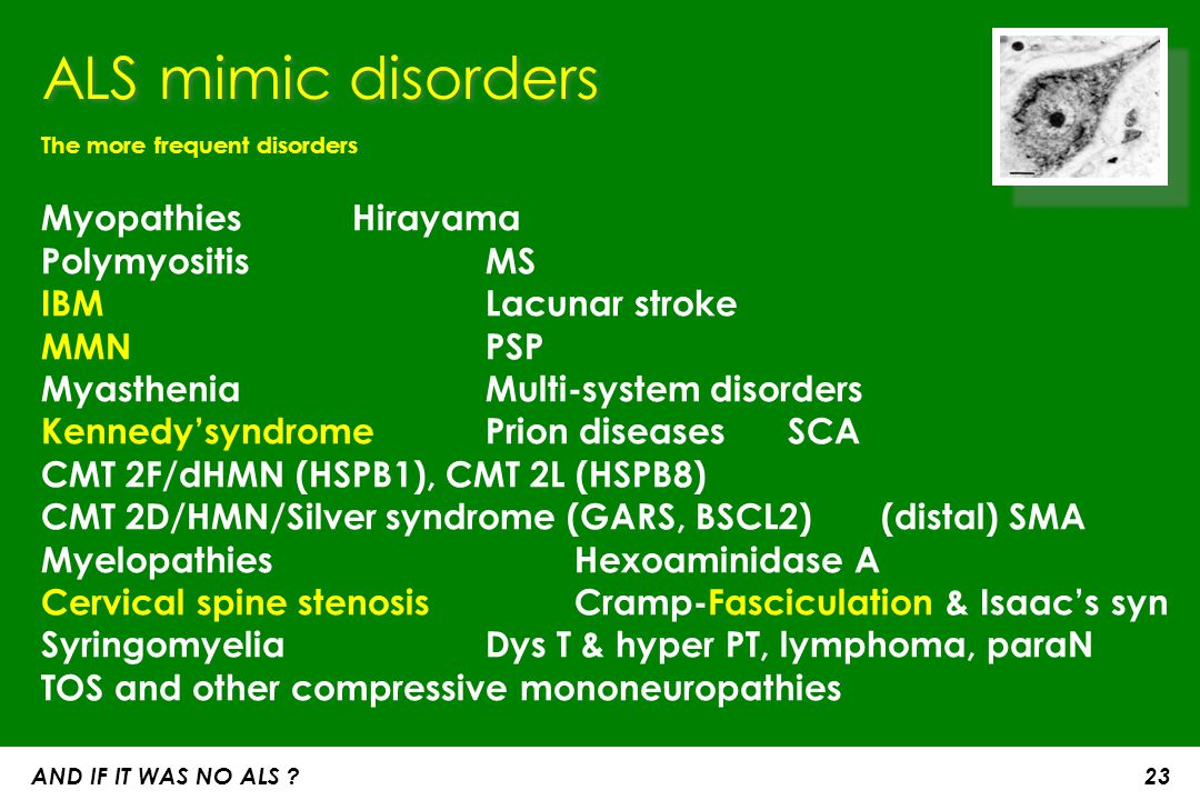 ALS mimic disorders The more frequent disorders. Myopathies Hirayama Polymyositis MS IBM Lacunar stroke.