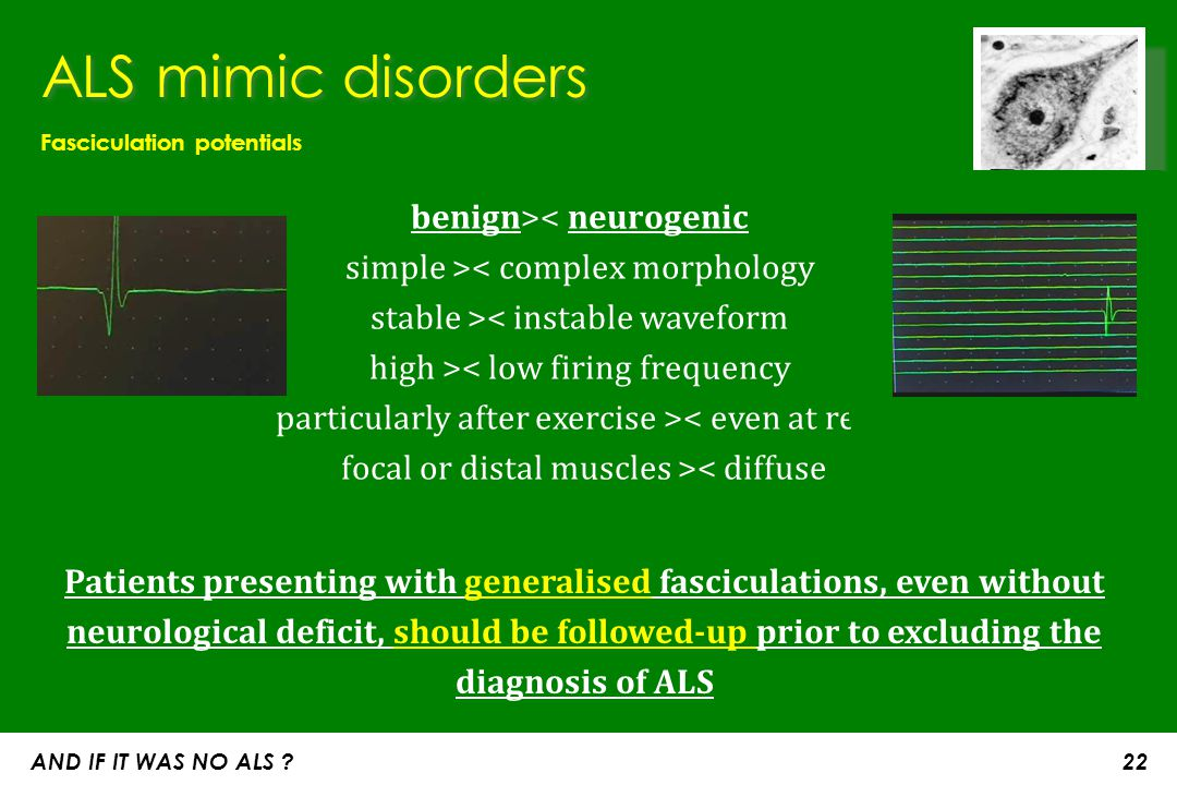 ALS mimic disorders benign>< neurogenic