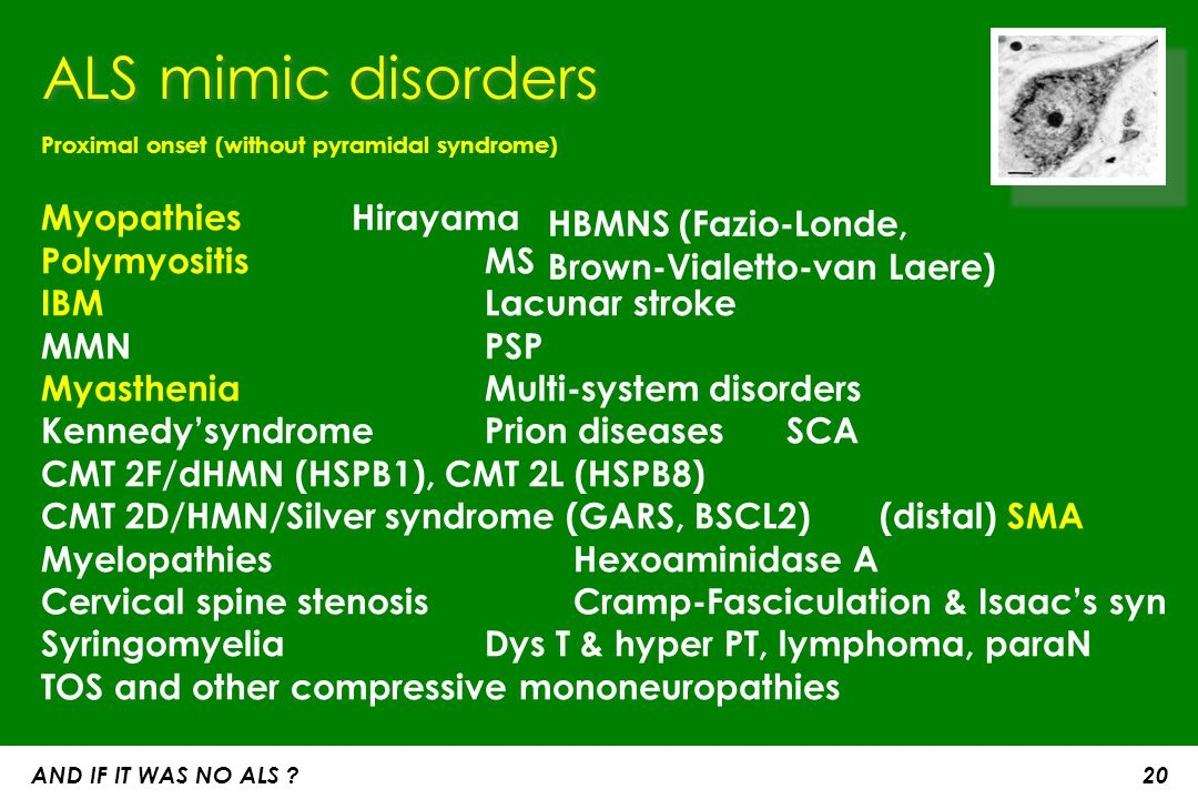 ALS mimic disorders Proximal onset (without pyramidal syndrome) Myopathies Hirayama Polymyositis MS IBM Lacunar stroke.
