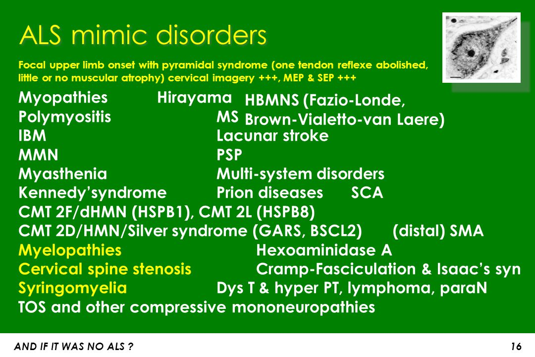 ALS mimic disorders