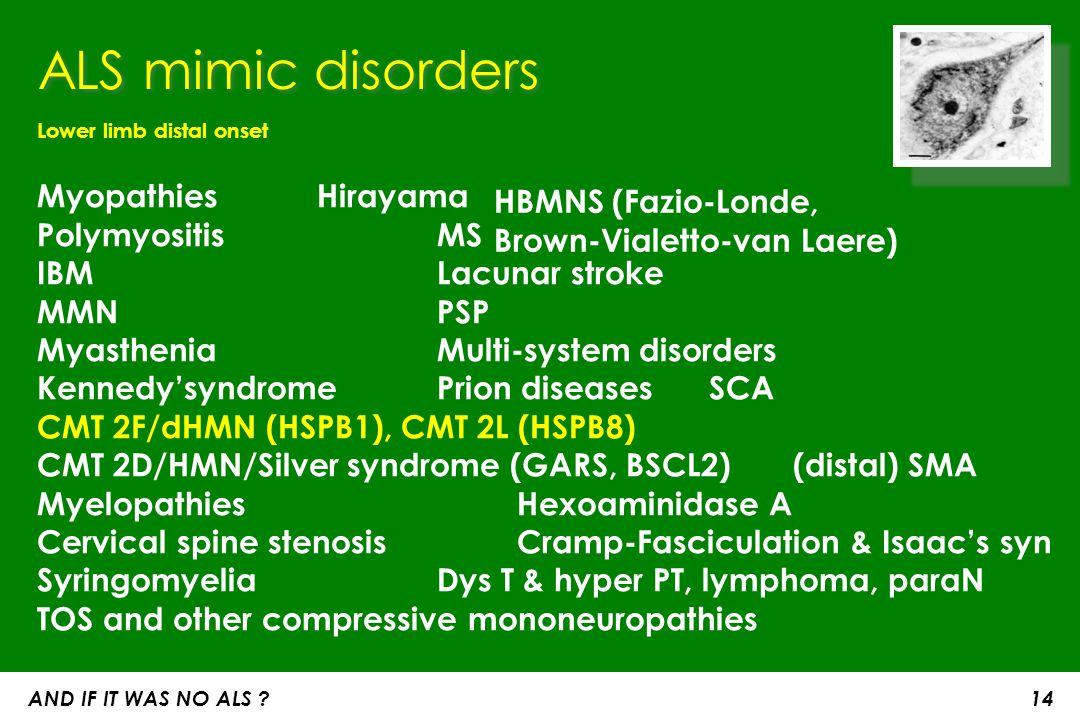 ALS mimic disorders Lower limb distal onset. Myopathies Hirayama Polymyositis MS IBM Lacunar stroke.
