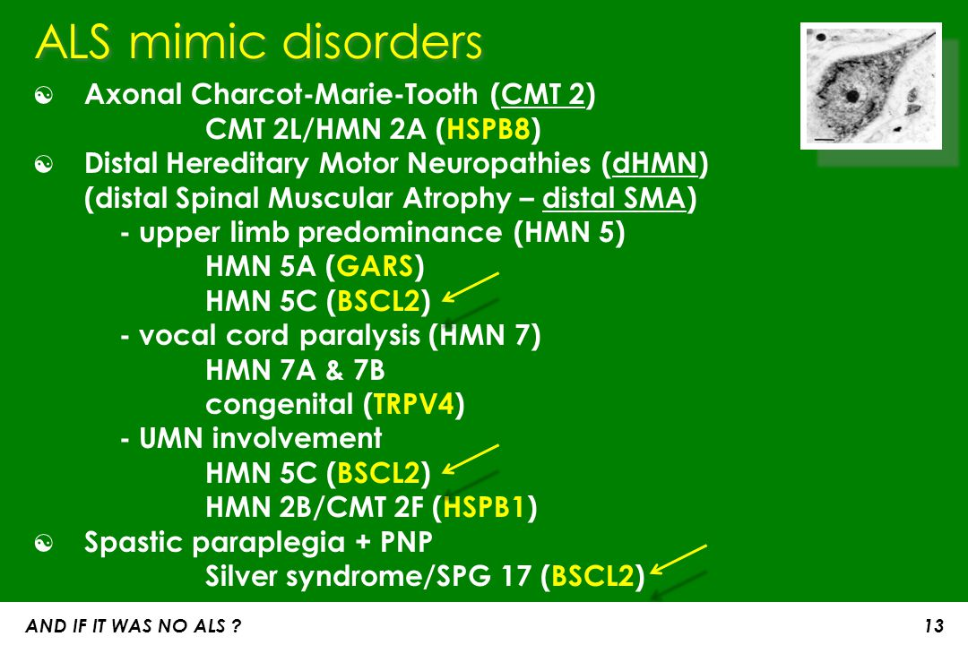 ALS mimic disorders Axonal Charcot-Marie-Tooth (CMT 2) CMT 2L/HMN 2A (HSPB8)