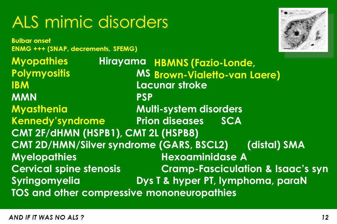 ALS mimic disorders Bulbar onset ENMG +++ (SNAP, decrements, SFEMG) Myopathies Hirayama Polymyositis MS IBM Lacunar stroke.
