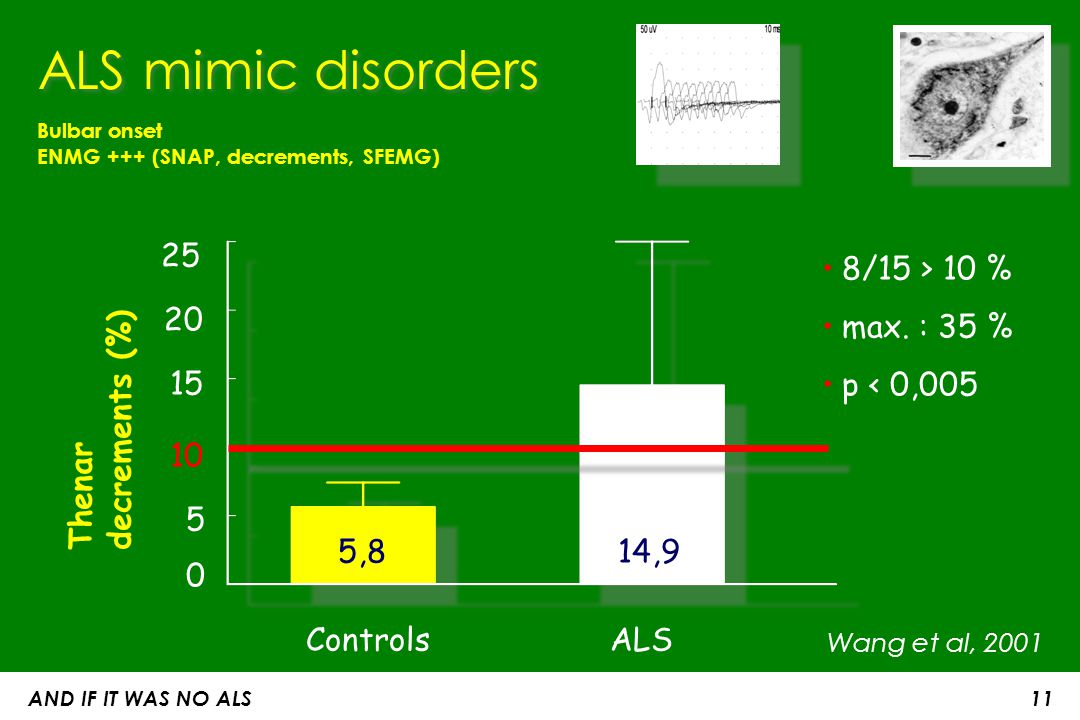 ALS mimic disorders 25 8/15 > 10 % max. : 35 % p < 0,005