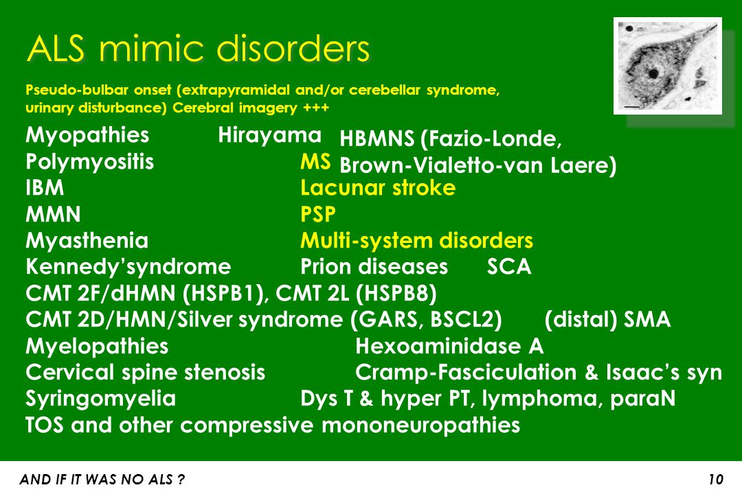 ALS mimic disorders Pseudo-bulbar onset (extrapyramidal and/or cerebellar syndrome, urinary disturbance) Cerebral imagery +++