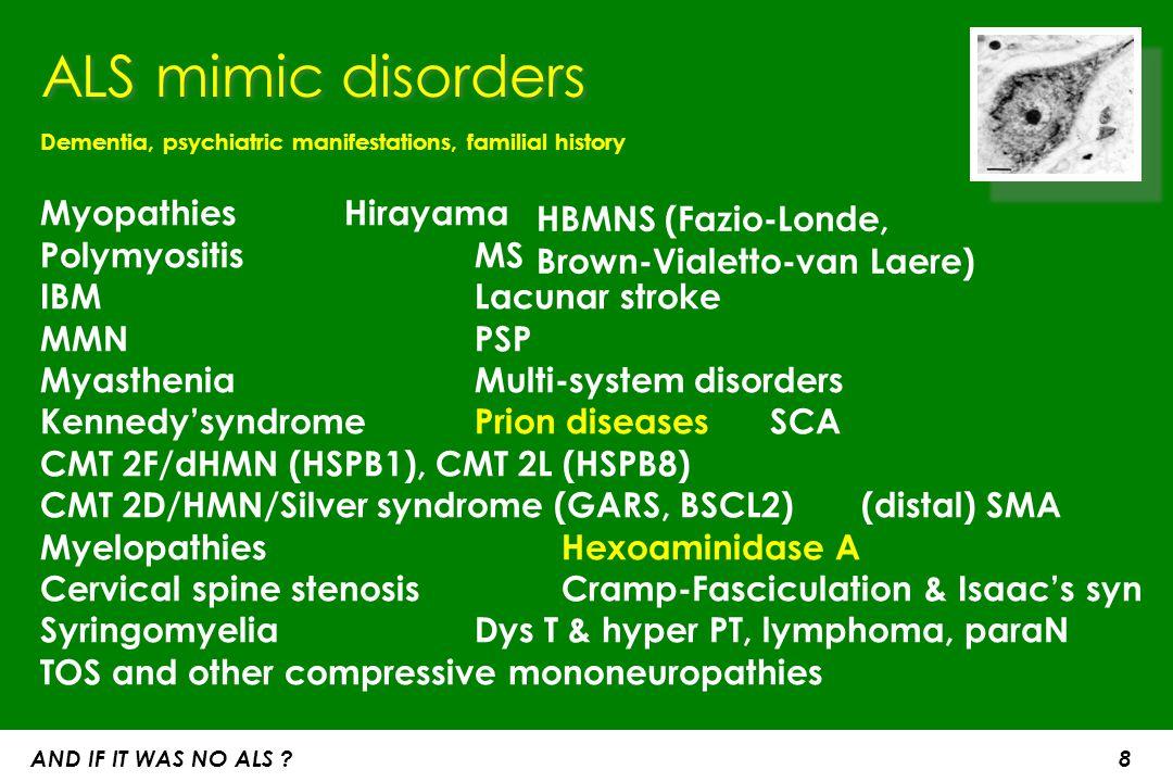 ALS mimic disorders Dementia, psychiatric manifestations, familial history. Myopathies Hirayama Polymyositis MS IBM Lacunar stroke.