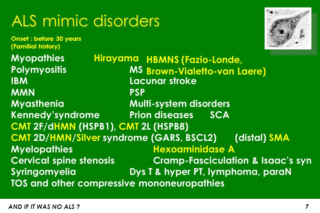 ALS mimic disorders Onset : before 30 years (Familial history) Myopathies Hirayama Polymyositis MS IBM Lacunar stroke.