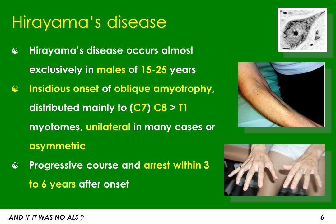Hirayama's disease Hirayama's disease occurs almost exclusively in males of 15-25 years.