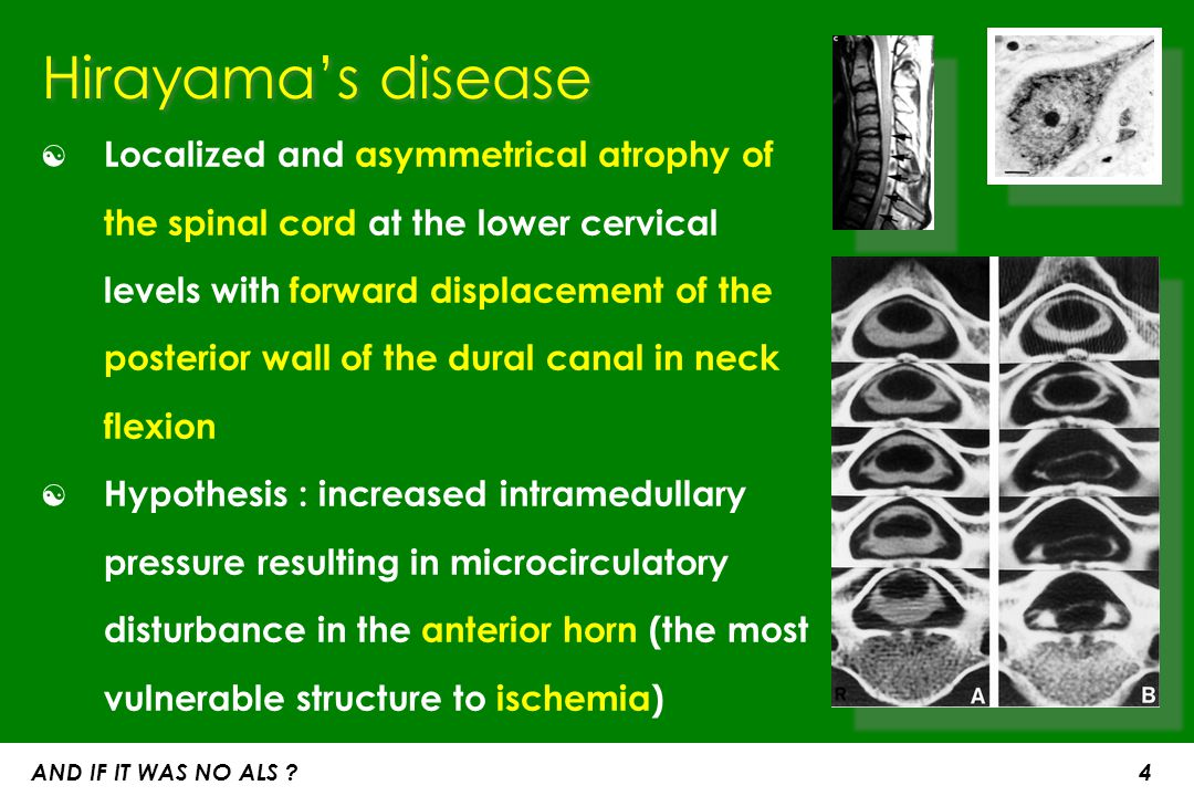 Hirayama's disease