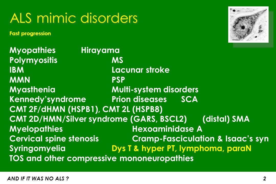 ALS mimic disorders Fast progression. Myopathies Hirayama Polymyositis MS IBM Lacunar stroke. MMN PSP.