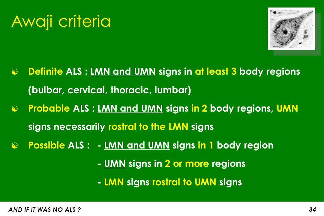 Awaji criteria Definite ALS : LMN and UMN signs in at least 3 body regions (bulbar, cervical, thoracic, lumbar)