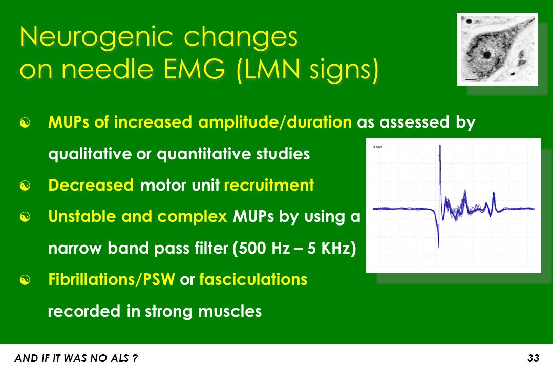 on needle EMG (LMN signs)