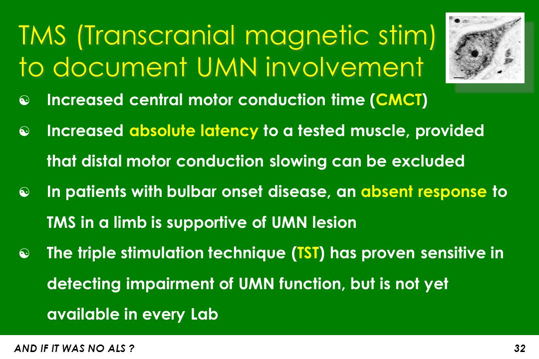TMS (Transcranial magnetic stim) to document UMN involvement