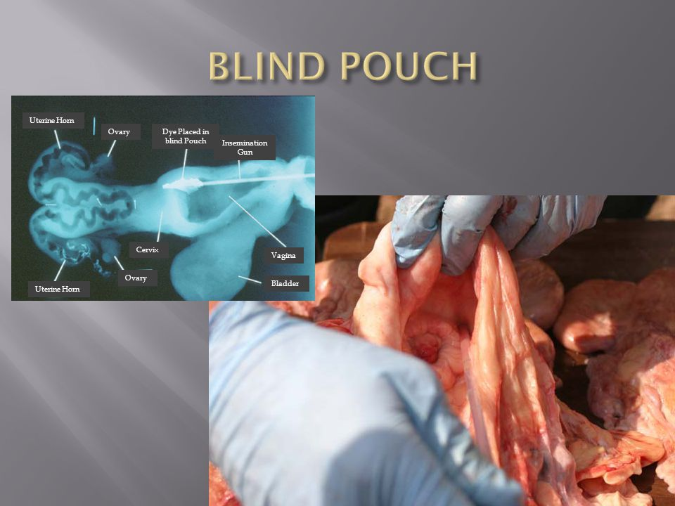Dye Placed in blind Pouch