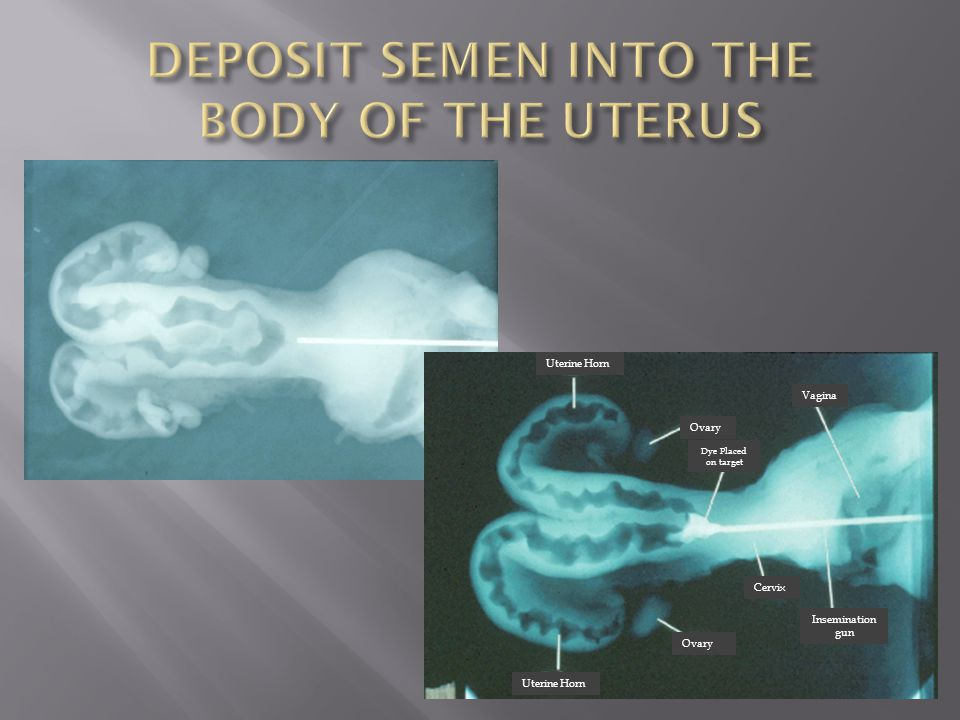DEPOSIT SEMEN INTO THE BODY OF THE UTERUS