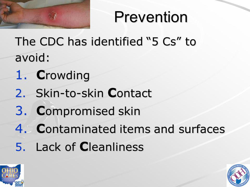 Prevention Crowding Compromised skin Contaminated items and surfaces