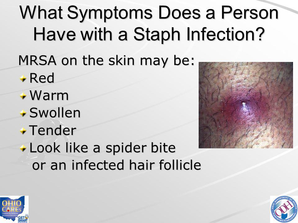 What Symptoms Does a Person Have with a Staph Infection