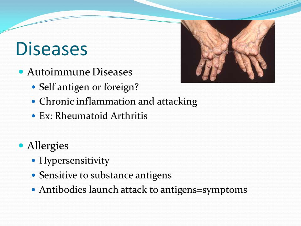 Diseases Autoimmune Diseases Allergies Self antigen or foreign