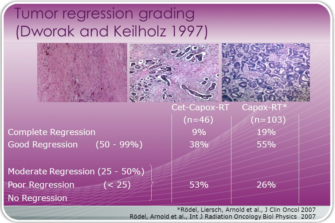Tumor regression grading (Dworak and Keilholz 1997)