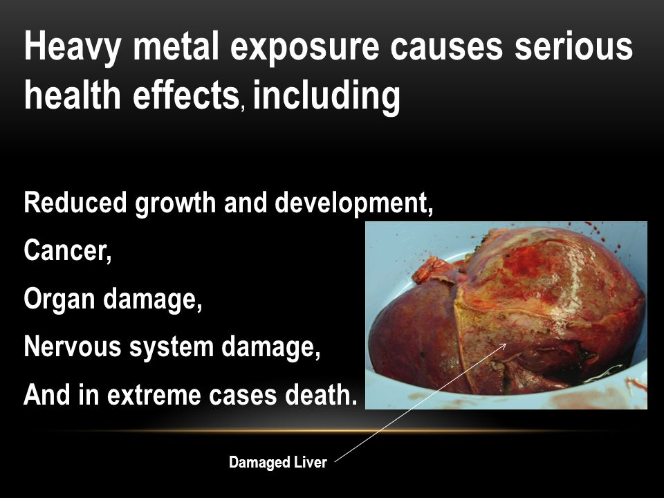Heavy metal exposure causes serious health effects, including